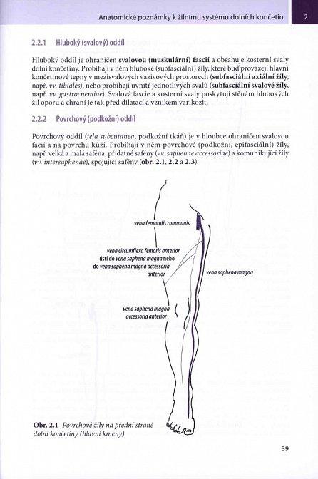 Náhled Ultrazvukové vyšetření žil dolních končetin