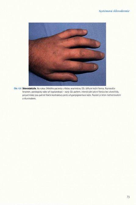 Náhled Revmatologie v obrazech