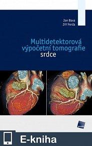 Multidetektorová výpočetní tomografie srdce (E-KNIHA)