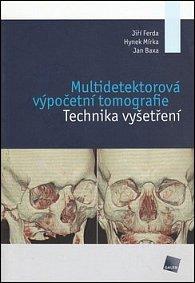 Multidetektorová výpočetní tomografie