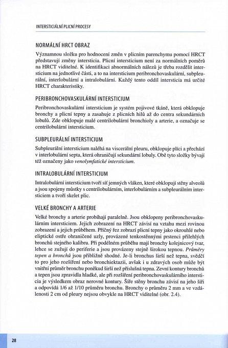 Náhled Intersticiální plicní procesy - Od etiopatogeneze přes radiologický obraz k histopatologické diagnóze