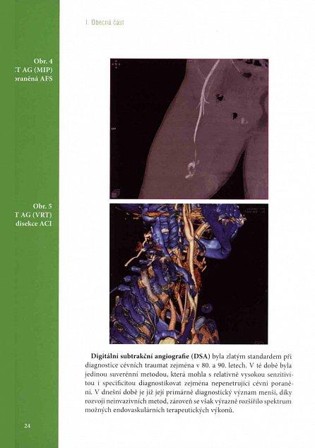 Náhled Poranění cévního systému