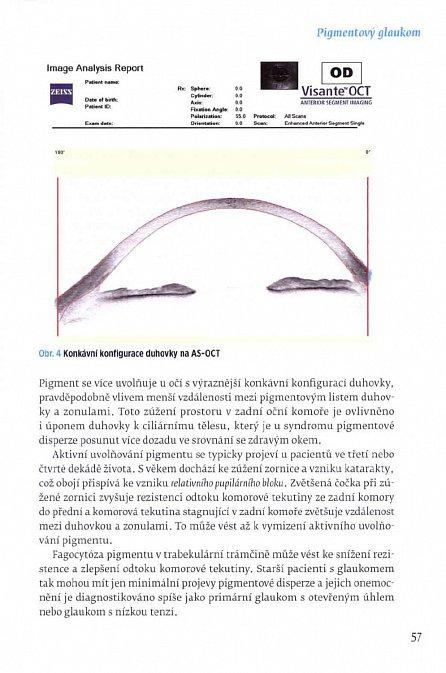 Náhled Sekundární glaukomy - Vybrané kapitoly