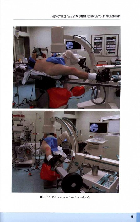 Náhled Zlomeniny proximálního femuru - Komplexní péče o pacienta