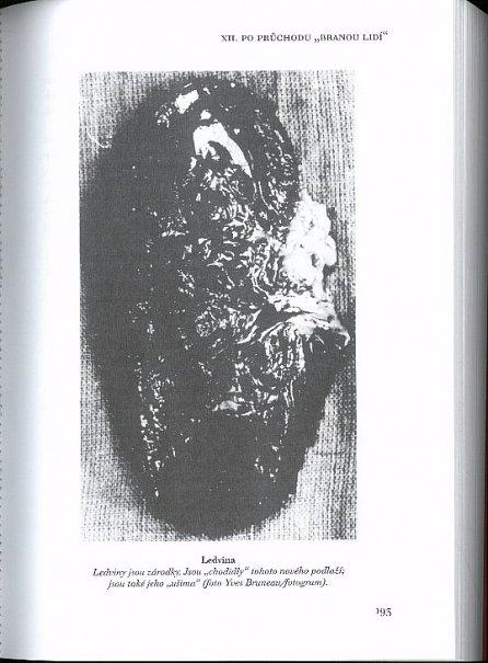 Náhled Symbolismus lidského těla