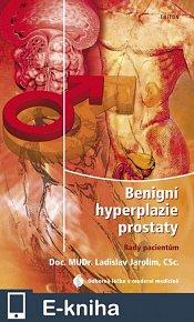 Benigní hyperplazie prostaty - rady pacientům (E-KNIHA)