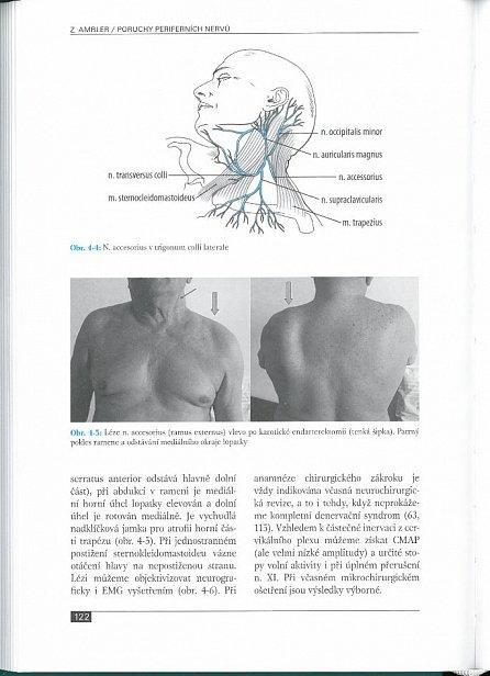 Náhled Poruchy periferních nervů