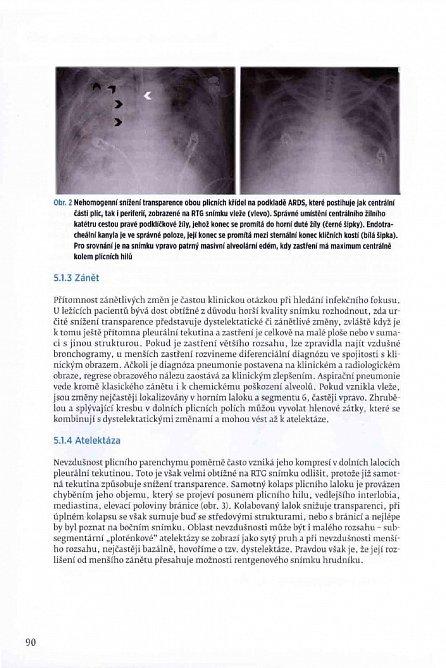 Náhled Anestezie a pooperační péče v hrudní chirurgii