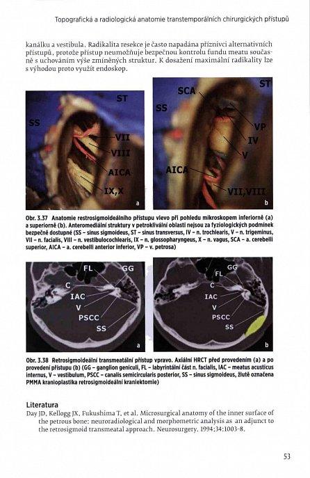 Náhled Lícní nerv - Anatomie, patologie, léčba