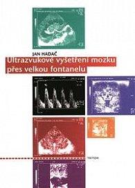 Ultrazvukové vyšetření mozku přes velkou fontanelu